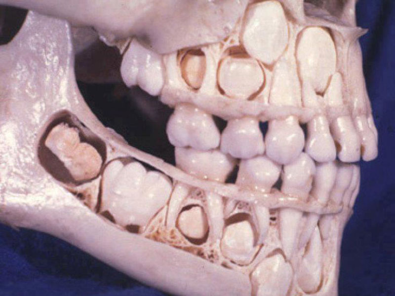 blog-2016-06-13-why-do-humans-have-bad-teeth-feature.jpg